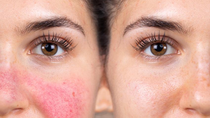 kiütések az arc bőrén vörös foltok formájában a felnőttek fotóin)