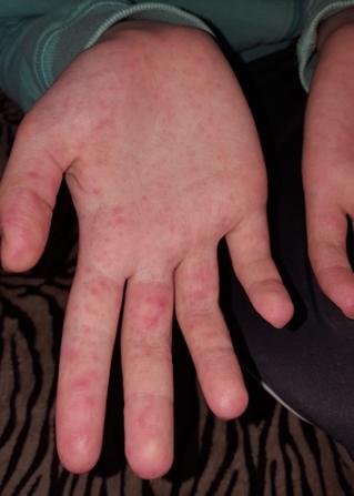 piros folt a kéz hátán