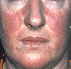 Szalicilsav kenőcs atópiás dermatitis