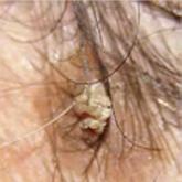 vörös fejfoltok kezelése a fejbőrön