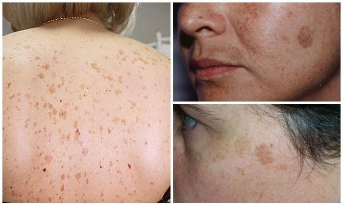 vörös foltok az arc bőrén mosás után)