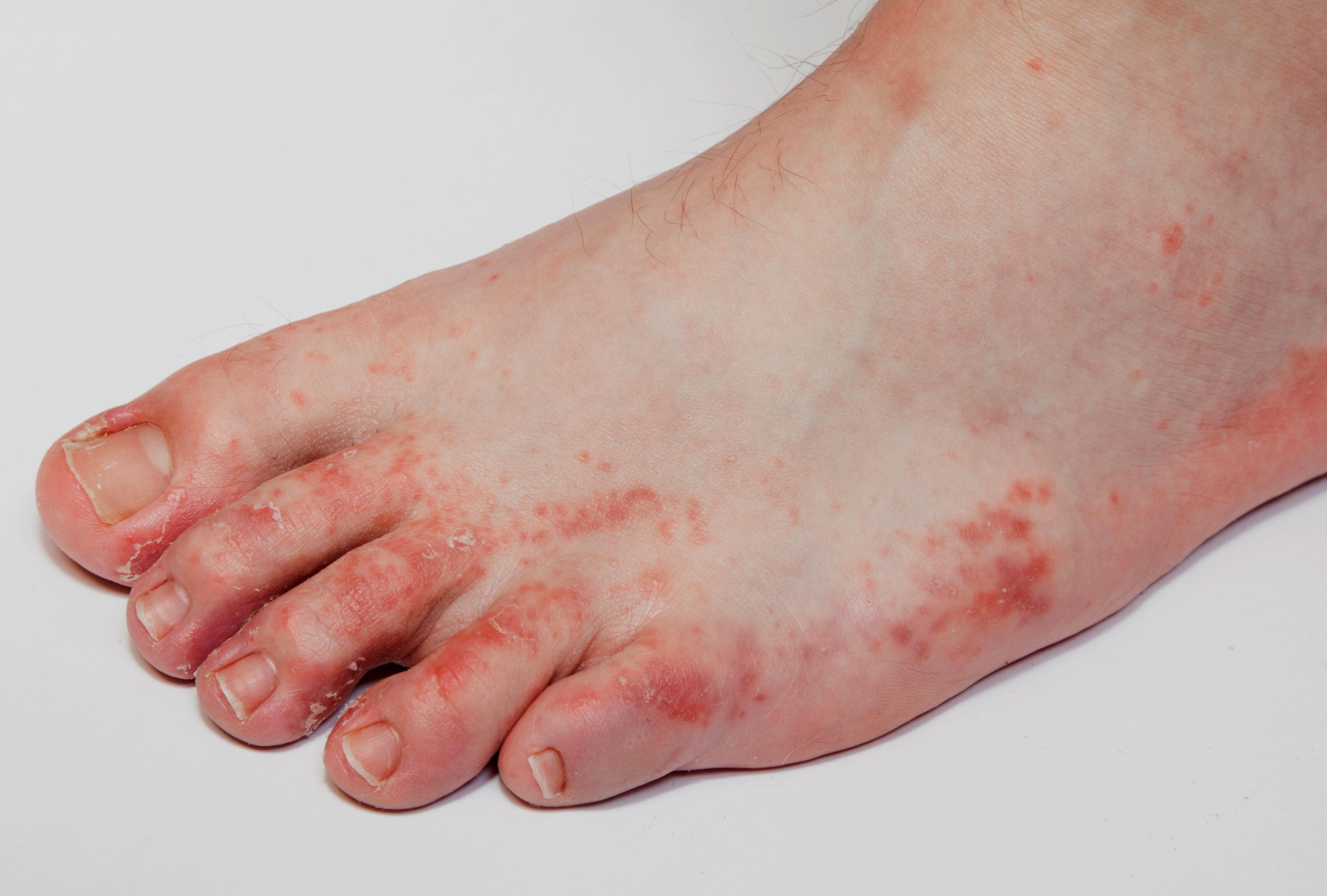 vörös foltok a lábujjakon