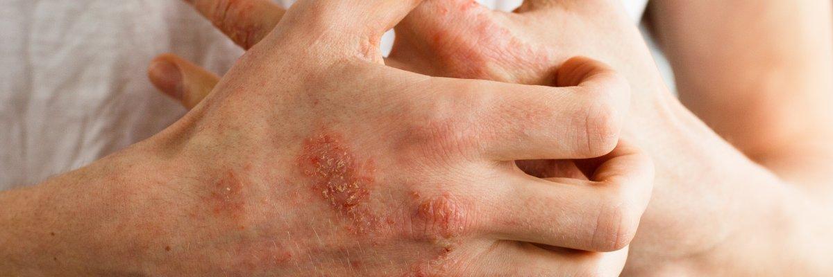 hogyan kell kezelni a pikkelysmr gondolat erejvel vörös foltok a kéz nyakának bőrén