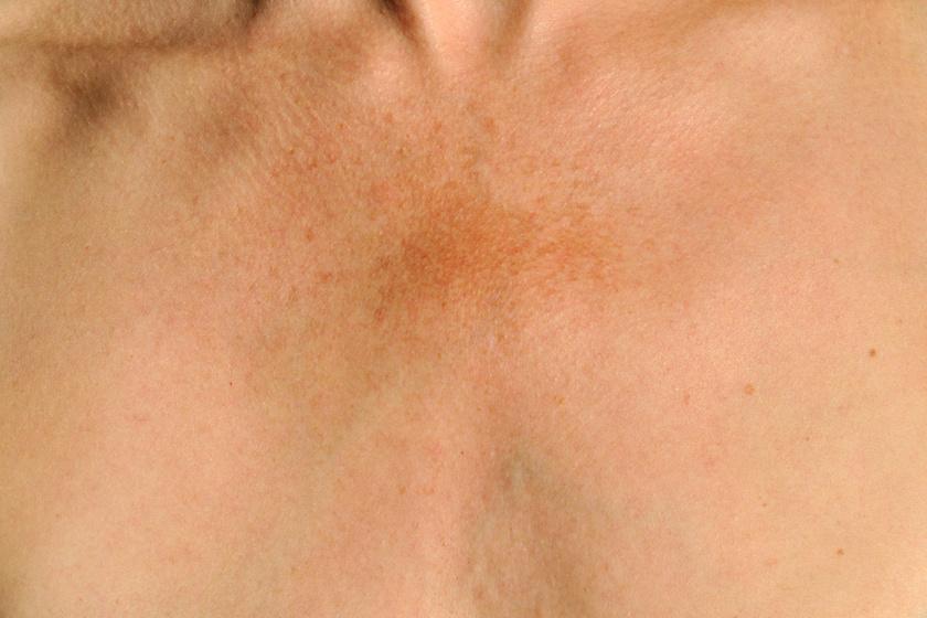 Rejtélyes fehér foltok a bőrön: mi okozza? - HáziPatika