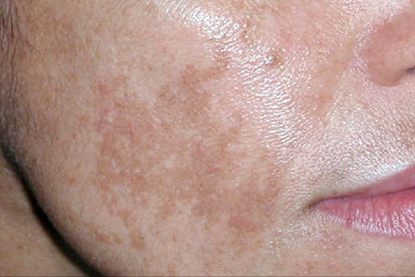 napvörös foltok a bőr kezelésén