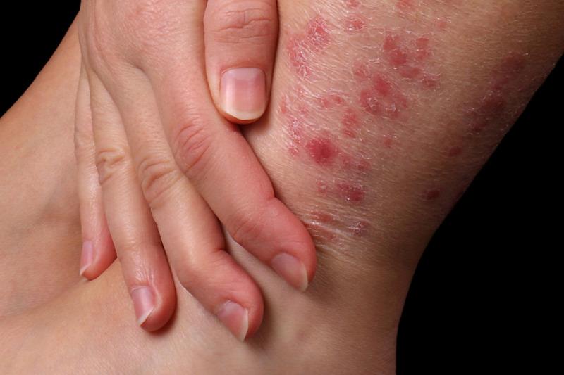 pikkelysömör örökletes betegség kezelése