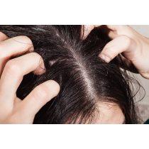 népi gyógymódok a fejbőr pikkelysömörének kezelésére)