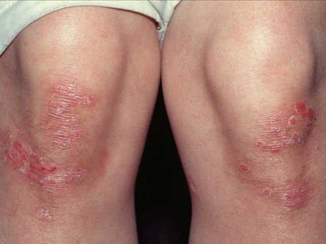 a pikkelysömör súlyosbodása otthoni kezelés hatékony pikkelysömör kezelése kenőcsökkel
