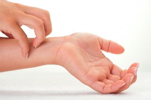 vörös foltok hámozzák a bőrt az ujjakon