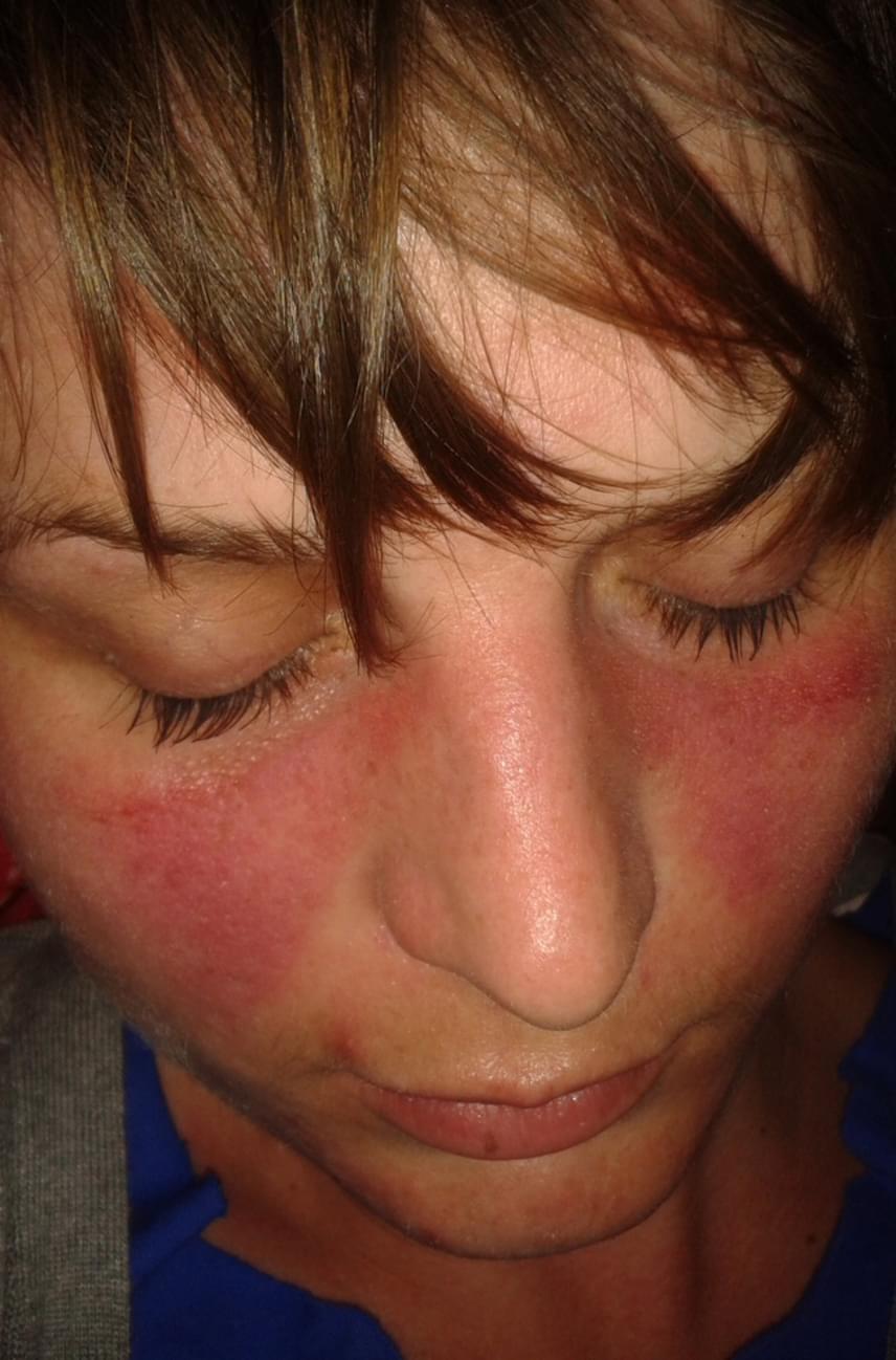 betegség vörös foltok az arcon)