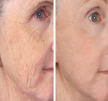 hogyan lehet megszabadulni a vörös foltoktól az arc kopása után kamilla a pikkelysmr kezelsben