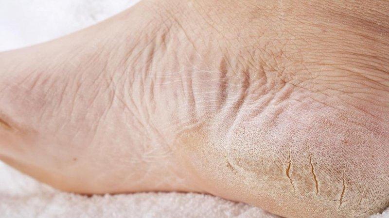 hogyan lehet fehéríteni a vörös foltokat a lábakon pikkelysömör kezelése a fehér tengeren