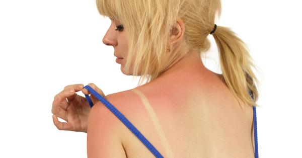 leégés után a bőr lehámlott és vörös foltok jelentek meg vörös viszkető foltok a bőrfotón