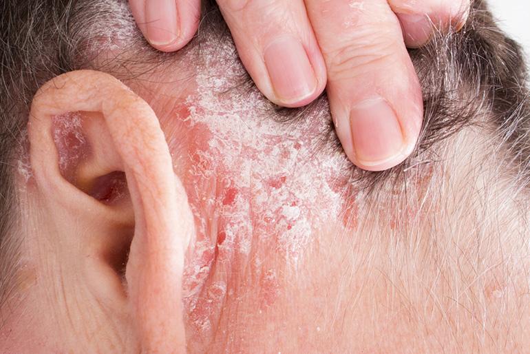 népi gyógymódok a pikkelysömör kezelésére a fejben