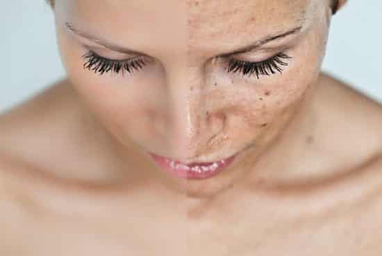 hogyan lehet fehéríteni a vörös foltokat a lábakon vörös foltok az arcon a keveréktől