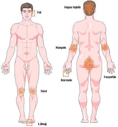 pikkelysömör kezelése karjaiban vörös foltok a bőrön, mint a libadombok