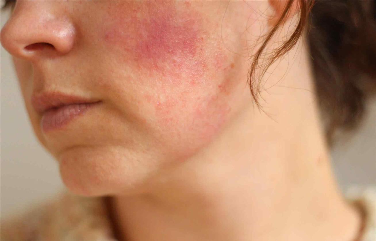 arcpakolás otthon a vörös foltok ellen vörös foltok jelentek meg a lábak bőrén