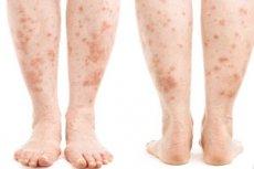 vörös foltok hámozása a lábakon