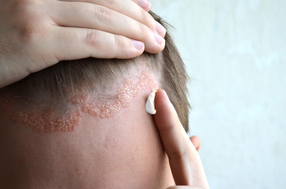 Tej-bogáncs: hasznos tulajdonságok és használata psoriasisban