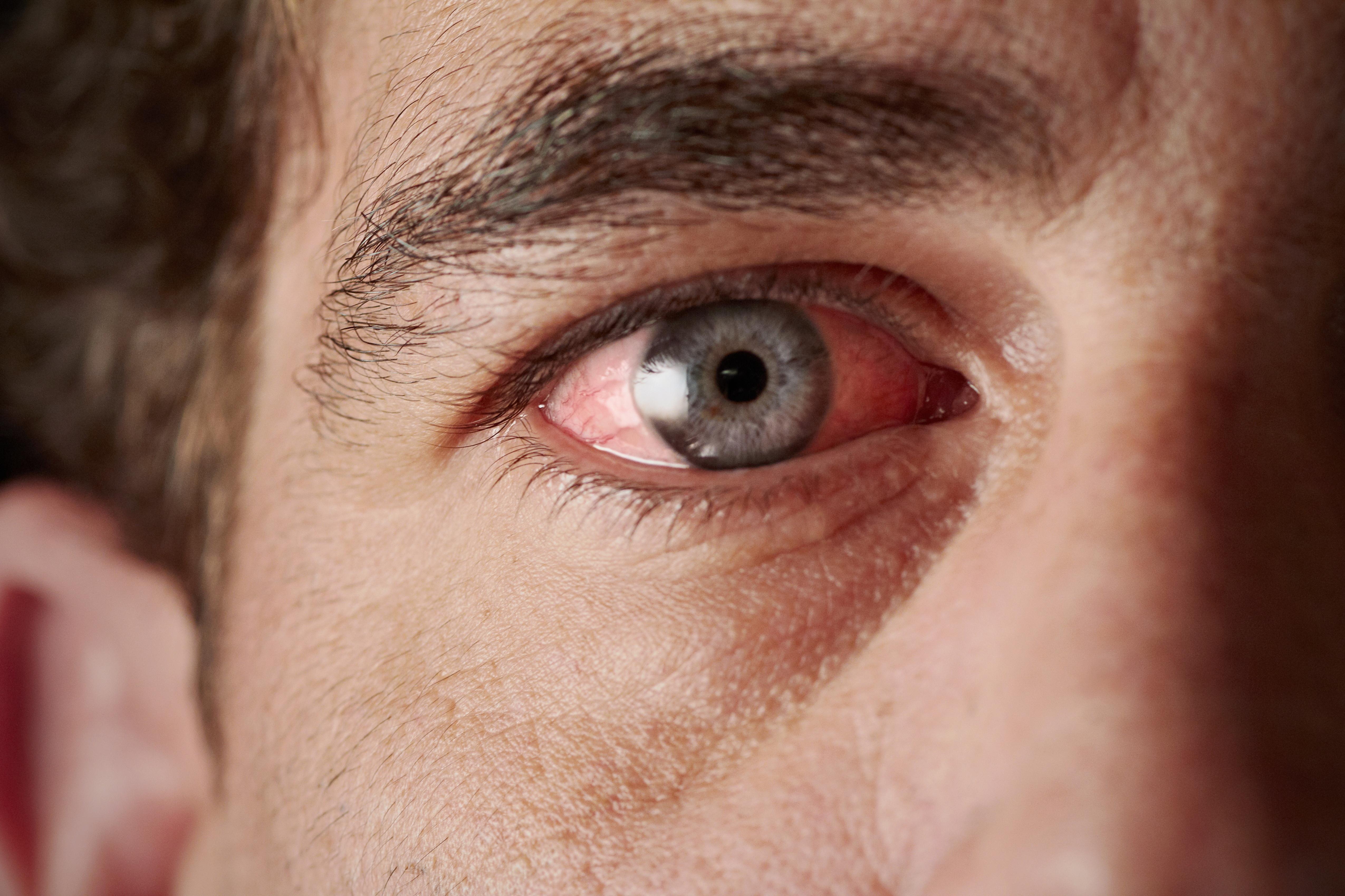 egy vörös folt jelent meg a szemhéjon, lehámozódott)
