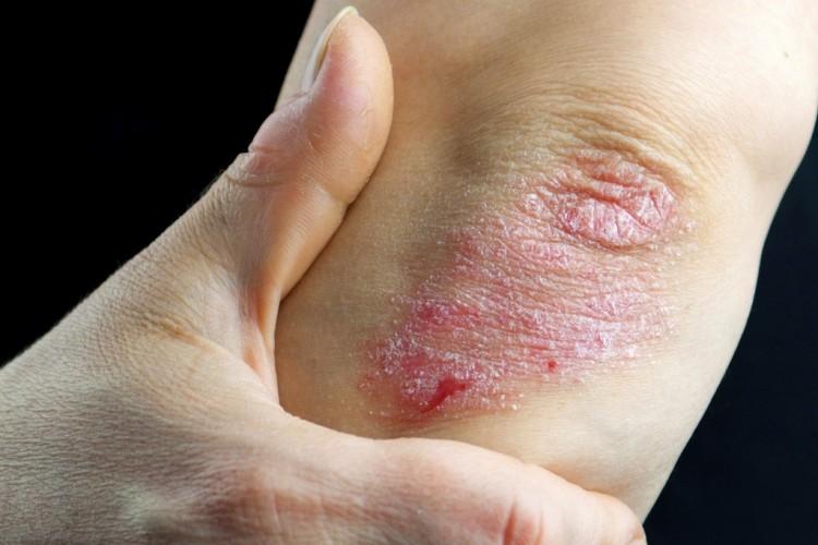 nagyon vörös foltok a lábakon, a fájdalom duzzanata
