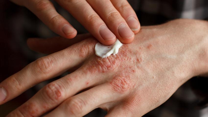 hogyan lehet gyógyítani a pikkelysömör dióval