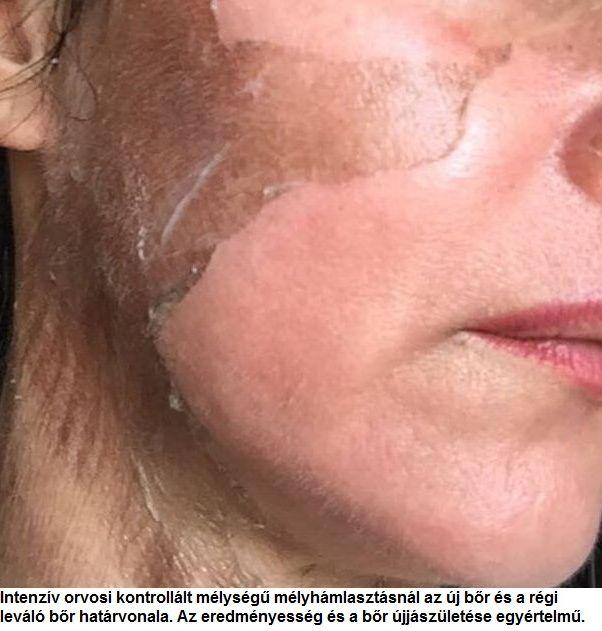 vörös foltok az arcon hámlasztó kezelés)