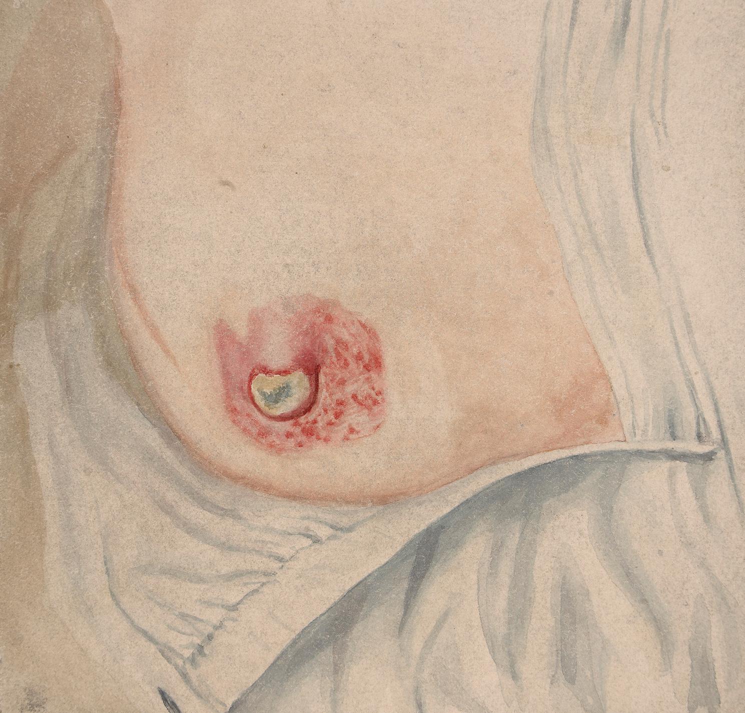 Milyen jelei vannak a mellráknak?