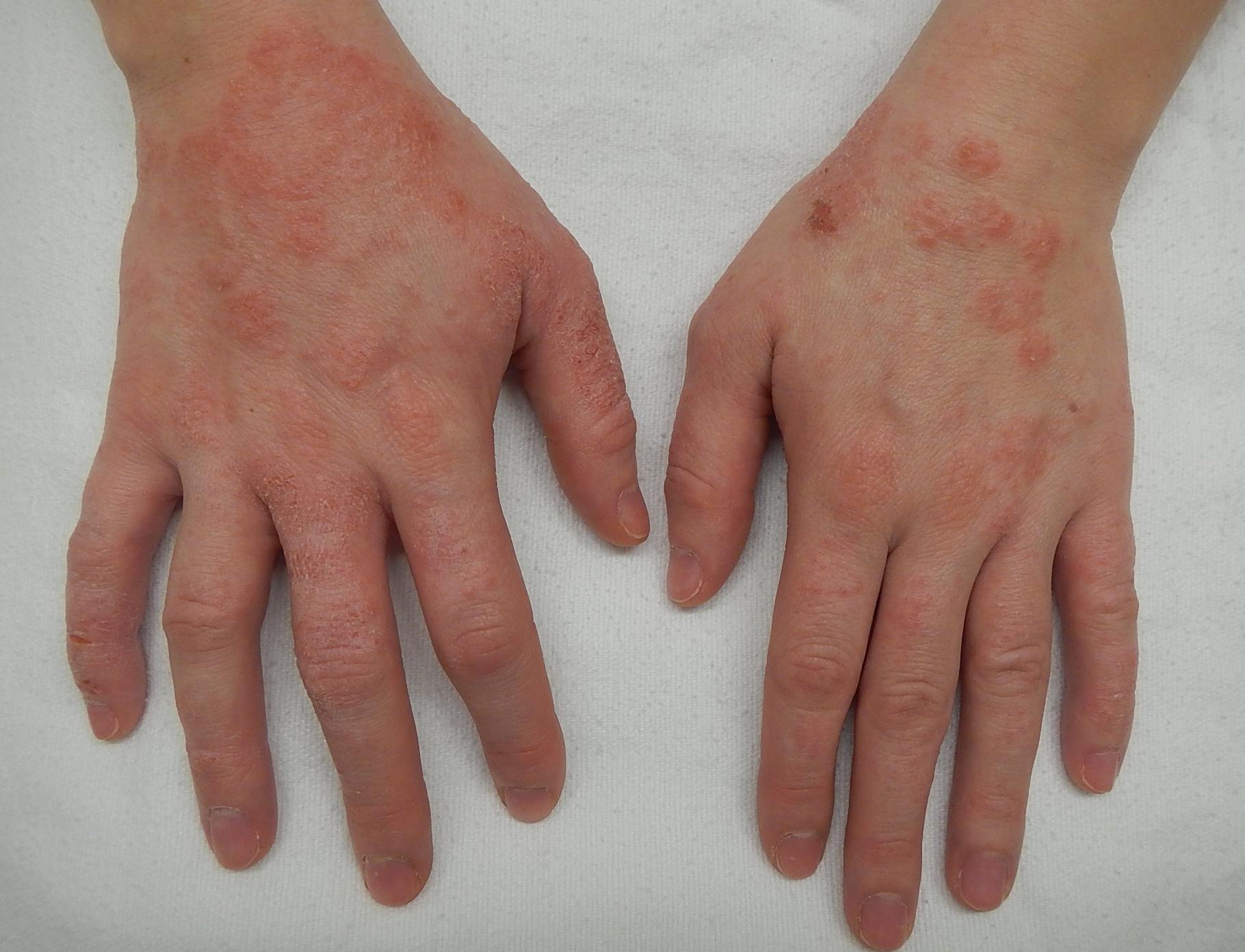 pikkelysömör egy új kezelési módszer nagy vörös foltok az arcon és a testen
