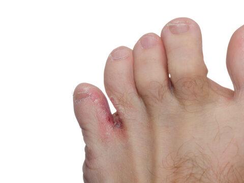 a lábujjak hegyei vörös foltok