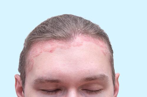 pikkelysömör a fejen kezels fotó