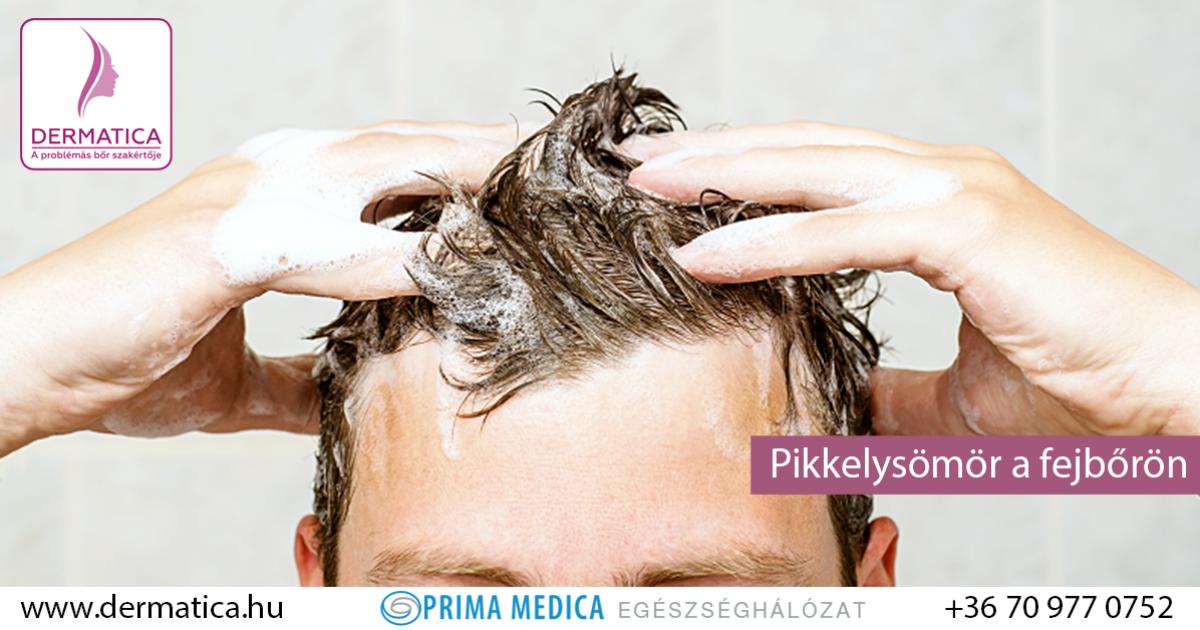 Eucerin®: Fejbőr- és hajproblémák | A száraz és viszkető fejbőrről