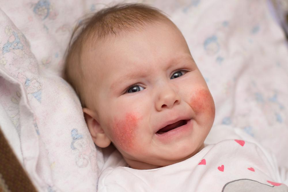 vörös irritált foltok az arcon)