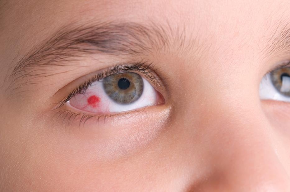 dermatitis pikkelysömör krém