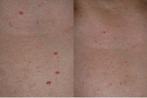 Egyre több piros, anyajegyszerű folt jelent meg a bőrödön? Ez az oka - Blikk Rúzs