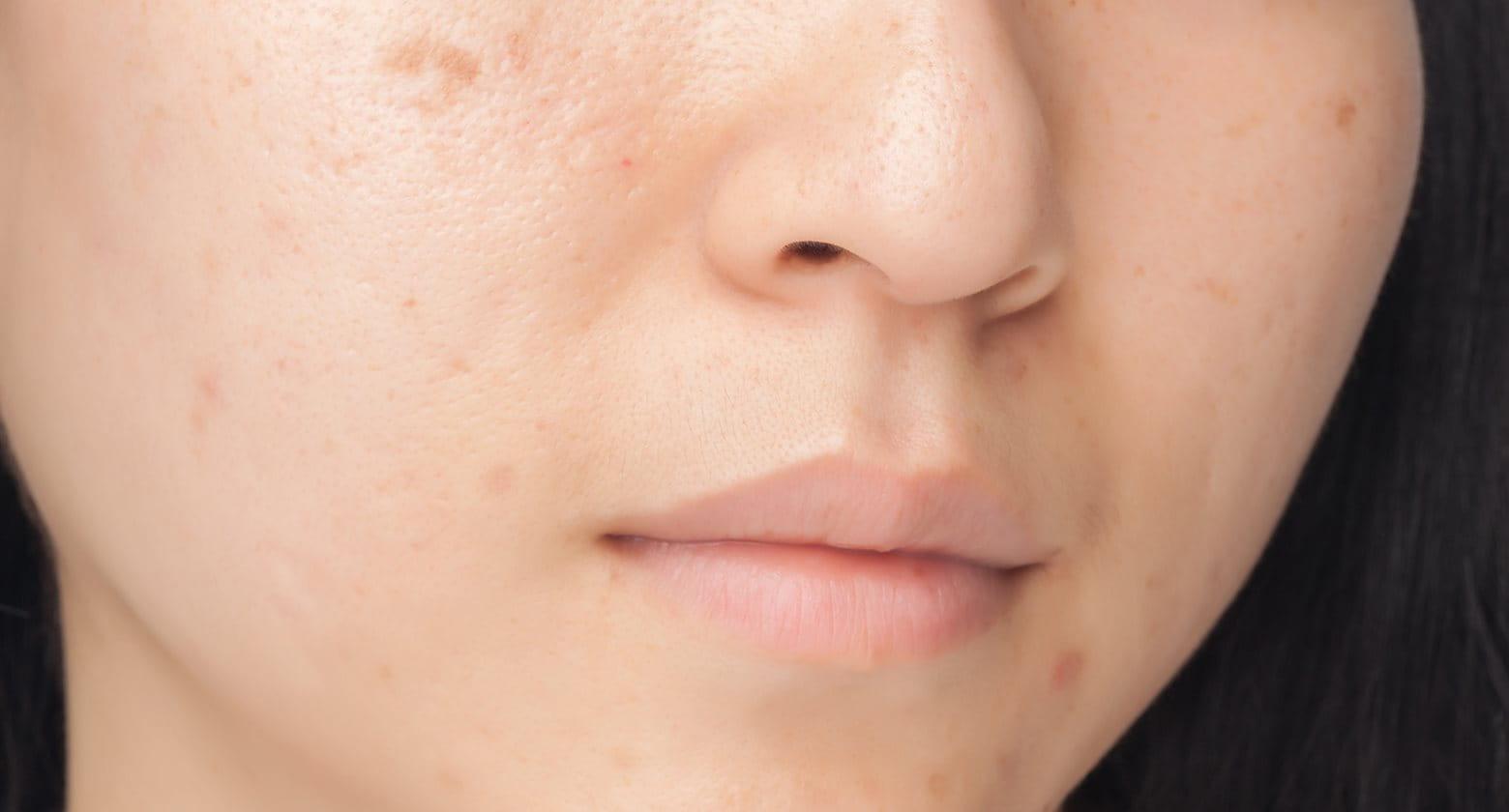 vörös foltok az arcon hámlasztó kezelés