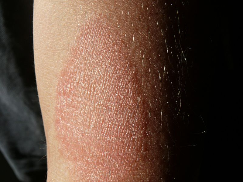 vörös foltok a hónalj alatt és a karokon kis vörös folt az arc bőrén