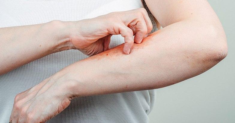 a fürdés után a bőr vörös foltokban van vörös foltok jelentek meg a lábán minták formájában fotó