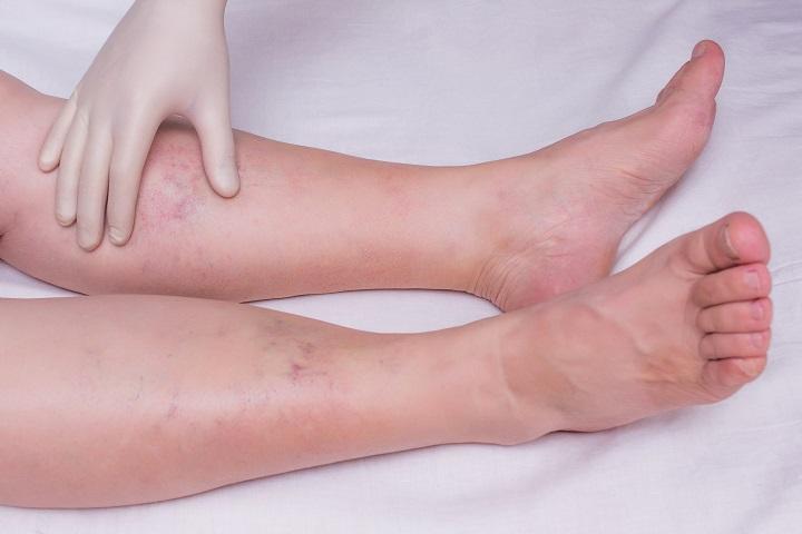 vörös foltok a lábakon, duzzanat)