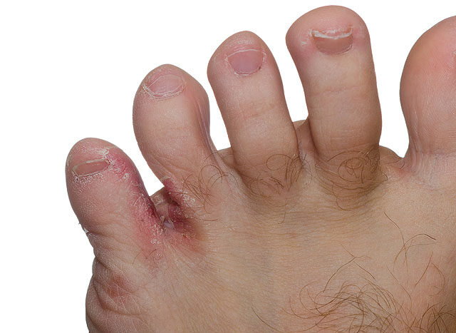 vörös vizes folt a lábán
