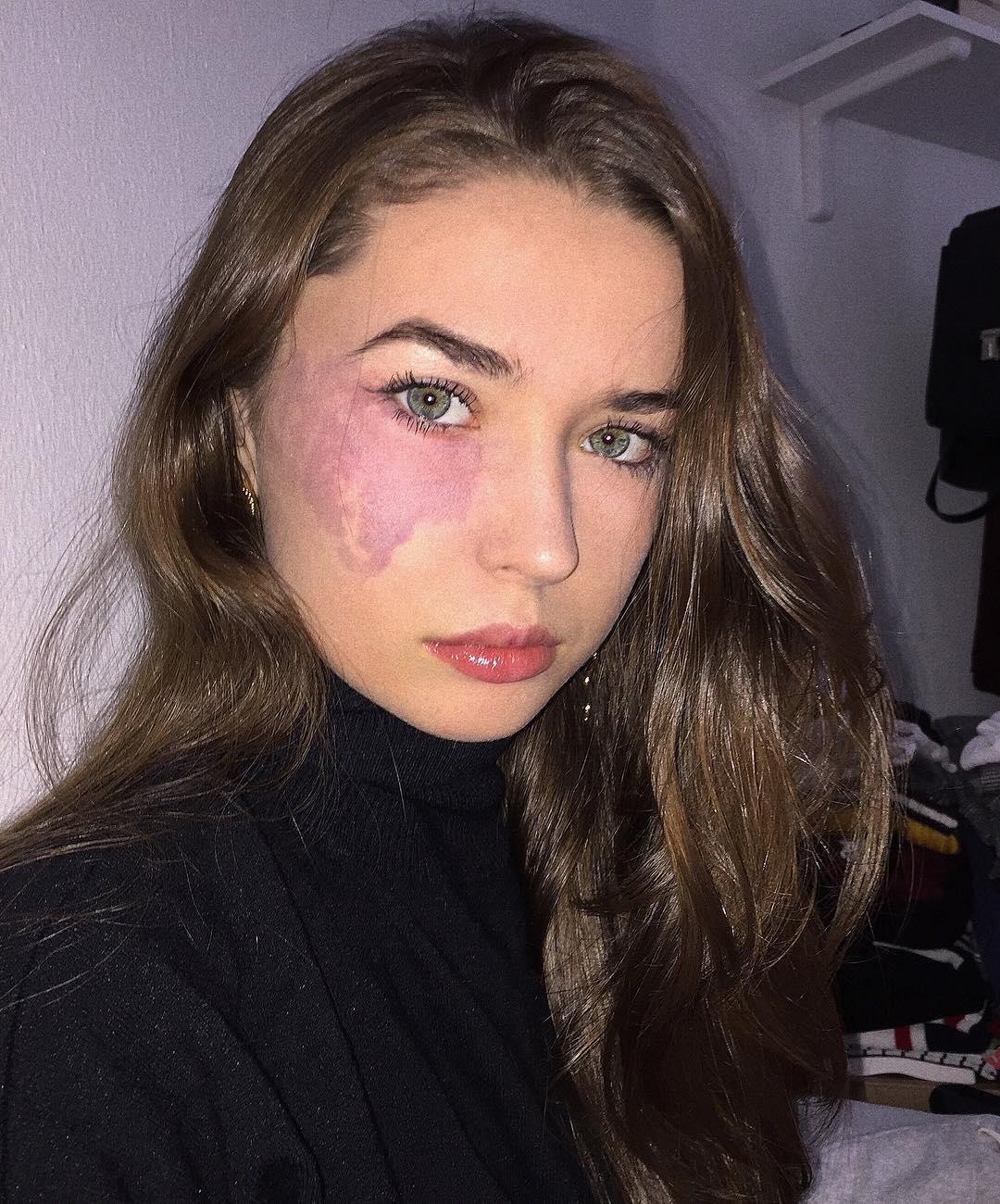 vörös foltokkal az arcán született