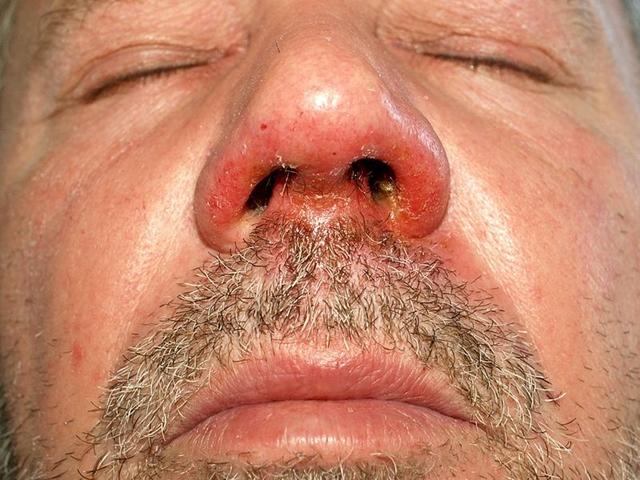 az orr alatt vörös foltok és hámlás)