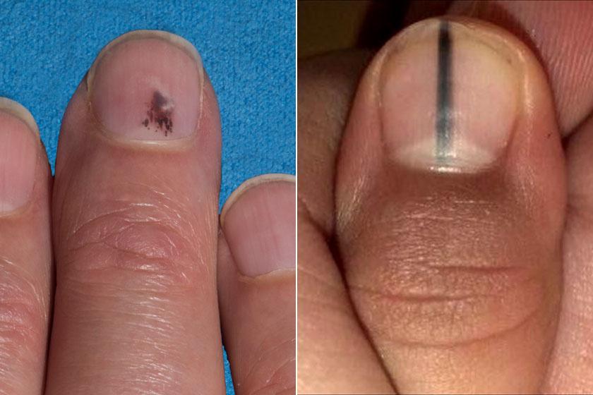 vörös folt a bőr alatt az ujján