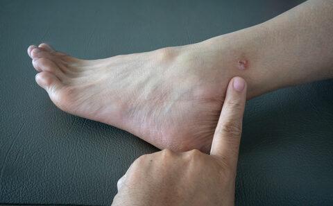 a lábakon lévő hővörös foltoktól pikkelysömör kezelése likopid