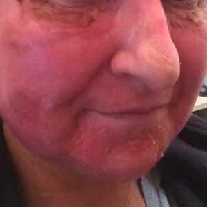 bőr vörös foltokkal a VSD-nél kenőcs pikkelysömör ízületi gyulladásához