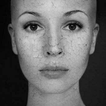 vörös foltok a betegség arcfotóján