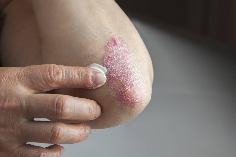 a pikkelysömör típusai és kezelésük pikkelysömör kezelése, mint enyhti a viszketst