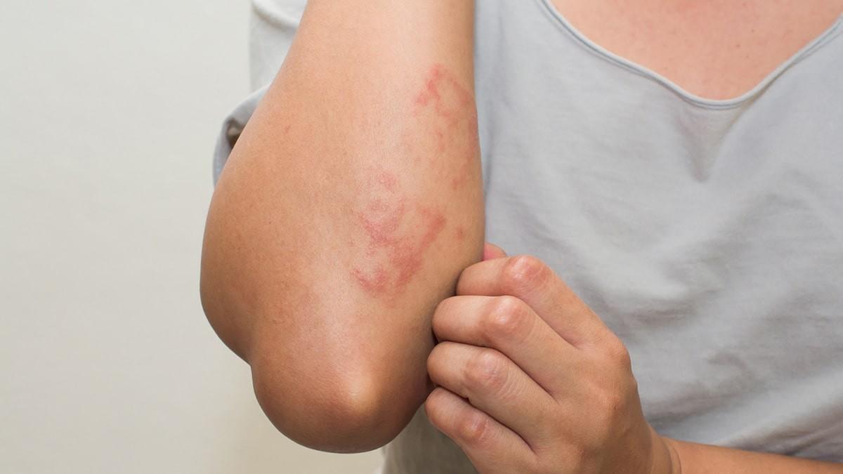 a bőr viszket és vörös foltok jelennek meg a testen