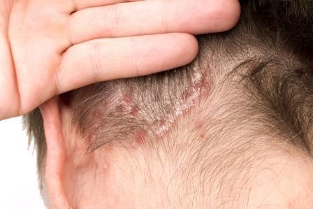 hogyan lehet gyógyítani a seborrhea és a pikkelysömör kiütések az arcon piros foltok formájában fotó