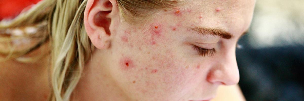 vörös anyajegyeket okoz az arcon